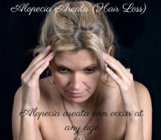 Alopecia And Autoimmune Disease (Hair Loss)