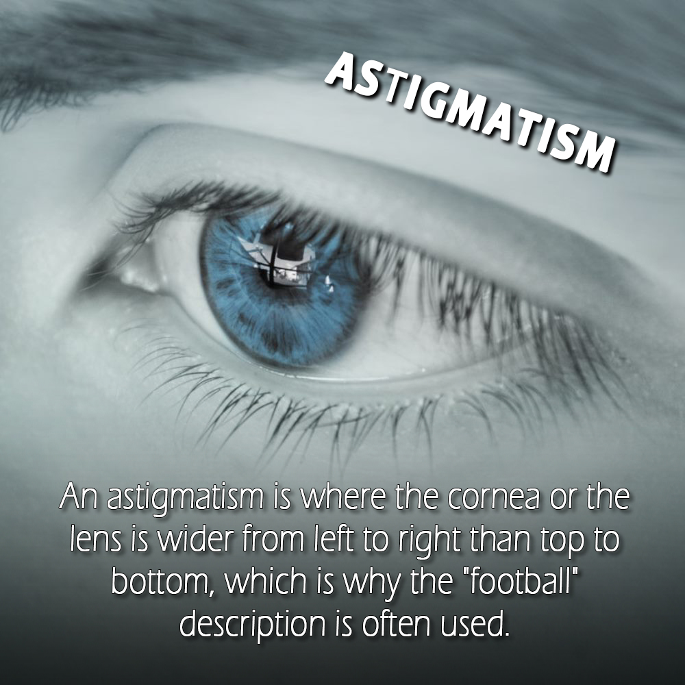 Astigmatism Is Treatable If Diagnose Properly