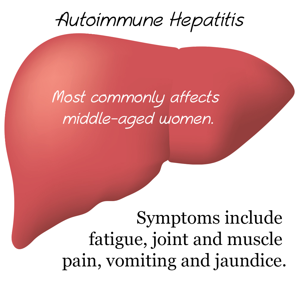 Liver Cell Damage Causes Autoimmune Hepatitis